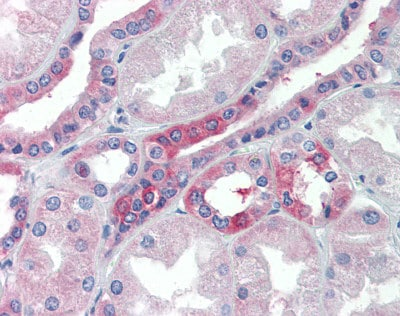 Immunohistochemistry (Formalin/PFA-fixed paraffin-embedded sections) - Anti-SLC25A28 antibody (ab80467)