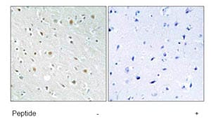 Immunohistochemistry (Formalin/PFA-fixed paraffin-embedded sections) - SSBP2 antibody (ab80515)