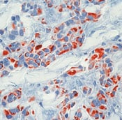 Immunohistochemistry (Formalin/PFA-fixed paraffin-embedded sections) - Cytokeratin 18 antibody [DC10] - BSA and Azide free (ab80572)