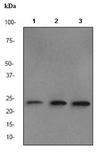 Western blot - BAG2 antibody [EPR3568] (ab80596)