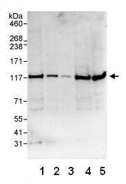 Western blot - Mov10 antibody (ab80613)