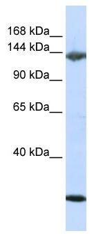 Western blot - Jagged 2 antibody (ab80671)
