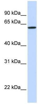 Western blot - DGCR2 antibody (ab80672)