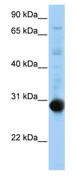 Western blot - NR0B2 antibody (ab80694)