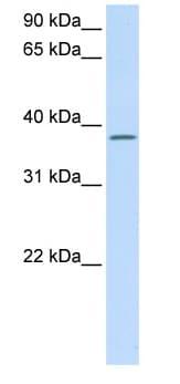 Western blot - C21orf91 antibody (ab80695)