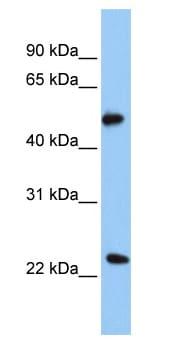 Western blot - POFUT2 antibody (ab80696)