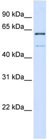 Western blot - METT10D antibody (ab80848)