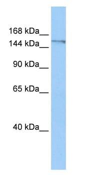 Western blot - DNA Polymerase theta antibody (ab80906)