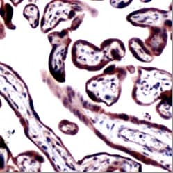Immunohistochemistry (Formalin/PFA-fixed paraffin-embedded sections) - RRM1 antibody (ab80924)
