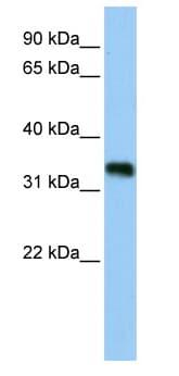 Western blot - C6orf140 antibody (ab80934)