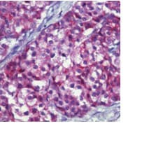 Immunohistochemistry (Formalin/PFA-fixed paraffin-embedded sections) - MUC1 antibody [MH1 ; same as CT2] - BSA and Azide free (ab80952)