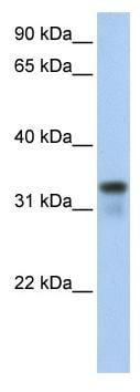 Western blot - GLYL2 antibody (ab80995)