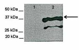Western blot - Anti-TSPAN3 antibody (ab81018)
