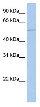 Western blot - ALG1 antibody (ab81134)