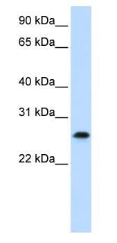 Western blot - PHF19 antibody (ab81164)