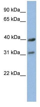 Western blot - Anti-MTXO3 antibody (ab81180)