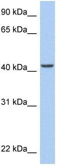 Western blot - ARID3C antibody (ab81241)