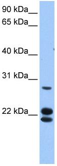 Western blot - LOC732272 antibody (ab81244)