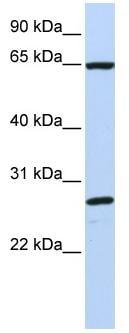 Western blot - DNAJC1 antibody (ab81313)