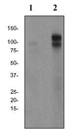 Western blot - Anti-delta 1 Catenin (phospho T310) antibody [EPR2382] (ab81318)
