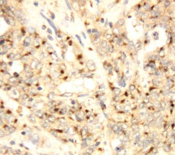 Immunohistochemistry (Formalin/PFA-fixed paraffin-embedded sections) - XAF1 antibody (ab81353)