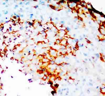 Immunohistochemistry (Formalin/PFA-fixed paraffin-embedded sections) - COX2 / Cyclooxygenase 2 antibody (ab81354)