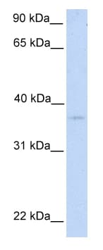 Western blot - NIPAL2 antibody (ab81362)