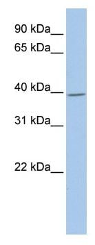 Western blot - G protein alpha inhibitor 1 antibody (ab81447)