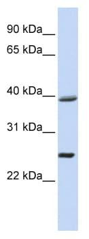 Western blot - C12orf42 antibody (ab81502)