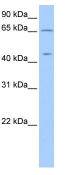 Western blot - ZPLD1 antibody (ab81512)