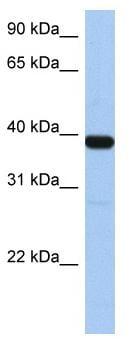 Western blot - ZNF781 antibody (ab81562)