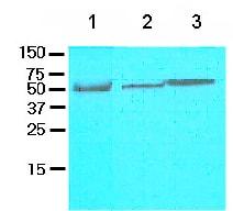 Western blot - FLIP antibody [5D8] (ab81617)
