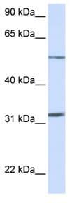 Western blot - SLC35A5 antibody (ab81637)