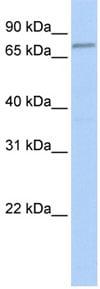 Western blot - FBXO42 antibody (ab81638)
