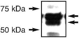Western blot - ERO1L antibody (ab81959)