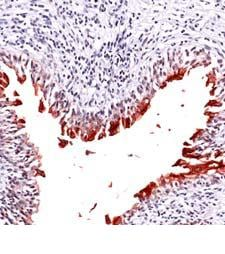 Immunohistochemistry (Formalin/PFA-fixed paraffin-embedded sections) - Uroplakin III antibody (ab82173)
