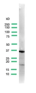 Western blot - Uroplakin III antibody (ab82173)