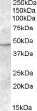 Western blot - TMPRSS4 antibody (ab82176)