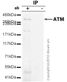 Immunoprecipitation - Anti-ATM antibody (ab82512)