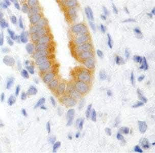 Immunohistochemistry (Formalin/PFA-fixed paraffin-embedded sections) - Dicer antibody [4A6] (ab82539)