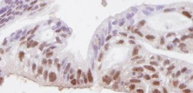 Immunohistochemistry (Formalin/PFA-fixed paraffin-embedded sections) - SMC3 antibody (ab82551)