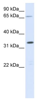 Western blot - C19orf47 antibody (ab82637)