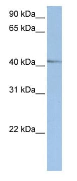 Western blot - NR2E1 / Tailless antibody (ab82667)