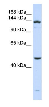 Western blot - ADAMTS18 antibody (ab82672)