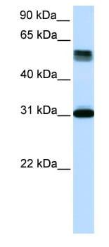 Western blot - TRIM31 antibody (ab82680)