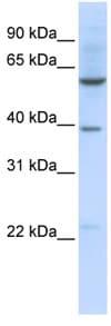 Western blot - SLC35F3 antibody (ab82692)