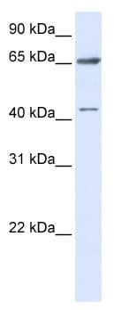 Western blot - CCDC19 antibody (ab82763)