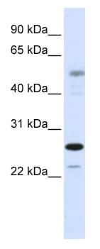 Western blot - PSMC3IP antibody (ab82772)