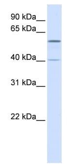 Western blot - TRIM49 antibody (ab82779)