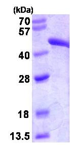 SDS-PAGE - FH protein (Human) (ab82790)